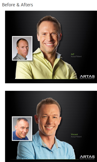 hair-regrowth-restoration-chicago-best